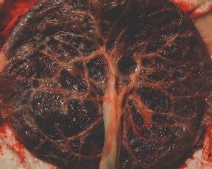 Tara & Dave - Placenta-2